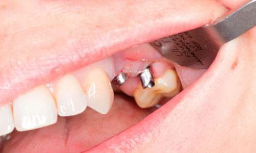 Grzegorz_Szumilas_1_laboratorium Dentystyczne