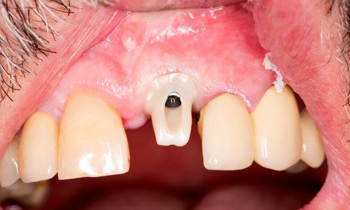 Grzegorz_Szumilas_3_laboratorium Dentystyczne