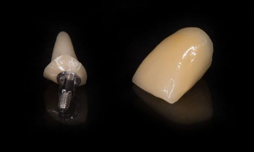 Grzegorz_Szumilas_6_laboratorium Dentystyczne