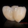 Crowns – implanty – all in one – most cyrkon – 4840-2015 72dpi