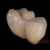 Crowns – implanty – all in one – most cyrkon – 4841-2015 72dpi