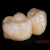 Crowns – implanty – all in one – most cyrkon – 4842-2015 72dpi
