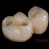 Crowns – implanty – all in one – most cyrkon – 4843-2015 72dpi