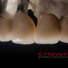 Crowns – implanty – most cementowany cocr – 7353-2015 -72dpi