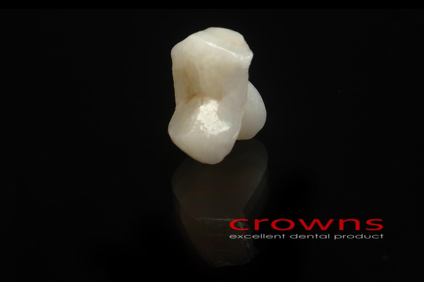 Crowns – in oley pełnoceramiczny – 4975-2015 72dpi