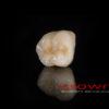 Crowns – korona CoCr – 5183-2015-72dpi