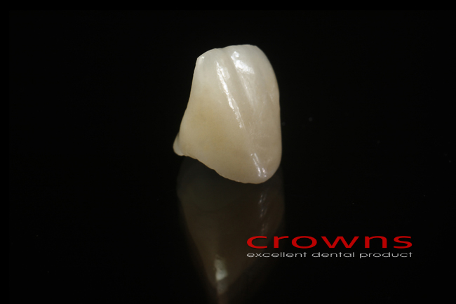 Crowns – korona pełnoceramiczna – 5011-2015 72dpi