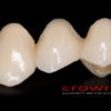 Crowns – most CoCr – 3471-2015 72dpi