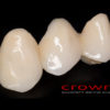 Crowns – most CoCr – 3473-2015 72dpi