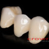 Crowns – most CoCr – 3482-2015 72dpi