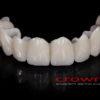 Crowns – most cyrkon – 5158-2015 72dpi