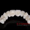 Crowns – most cyrkon – 5164-2015 72dpi