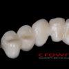 Crowns – most cyrkon – 5165-2015 72dpi