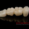Crowns – most pelnokonturowy – 5926-2015 72dpi