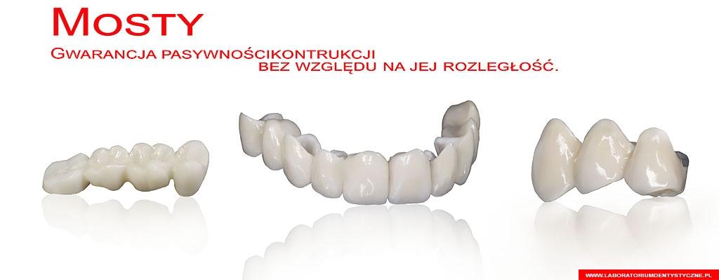 Laboratorium Dentystyczne - baner - most porcelanowy