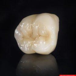 laboratorium dentystyczne – korona crowns CoCr 4