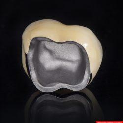 laboratorium dentystyczne – korona crowns CoCr 5
