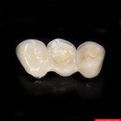 laboratorium dentystyczne – most crowns CoCr 4