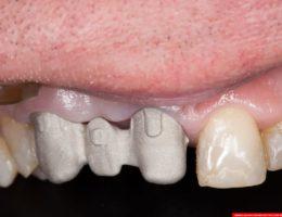 laboratorium dentystyczne – sintron – mosty 2