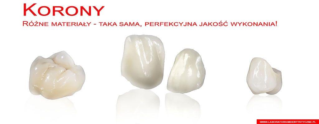 laboratorium dentystyczne - baner - korony