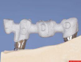 laboratorium dentystyczne – sintron – implanty 1