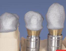laboratorium dentystyczne – sintron – implanty 4